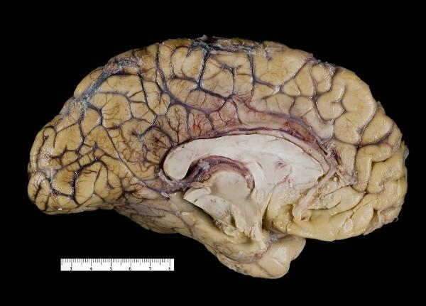 Luis Monje - Fotografía científica. Fotografía médica de la sección de un cerebro humano.